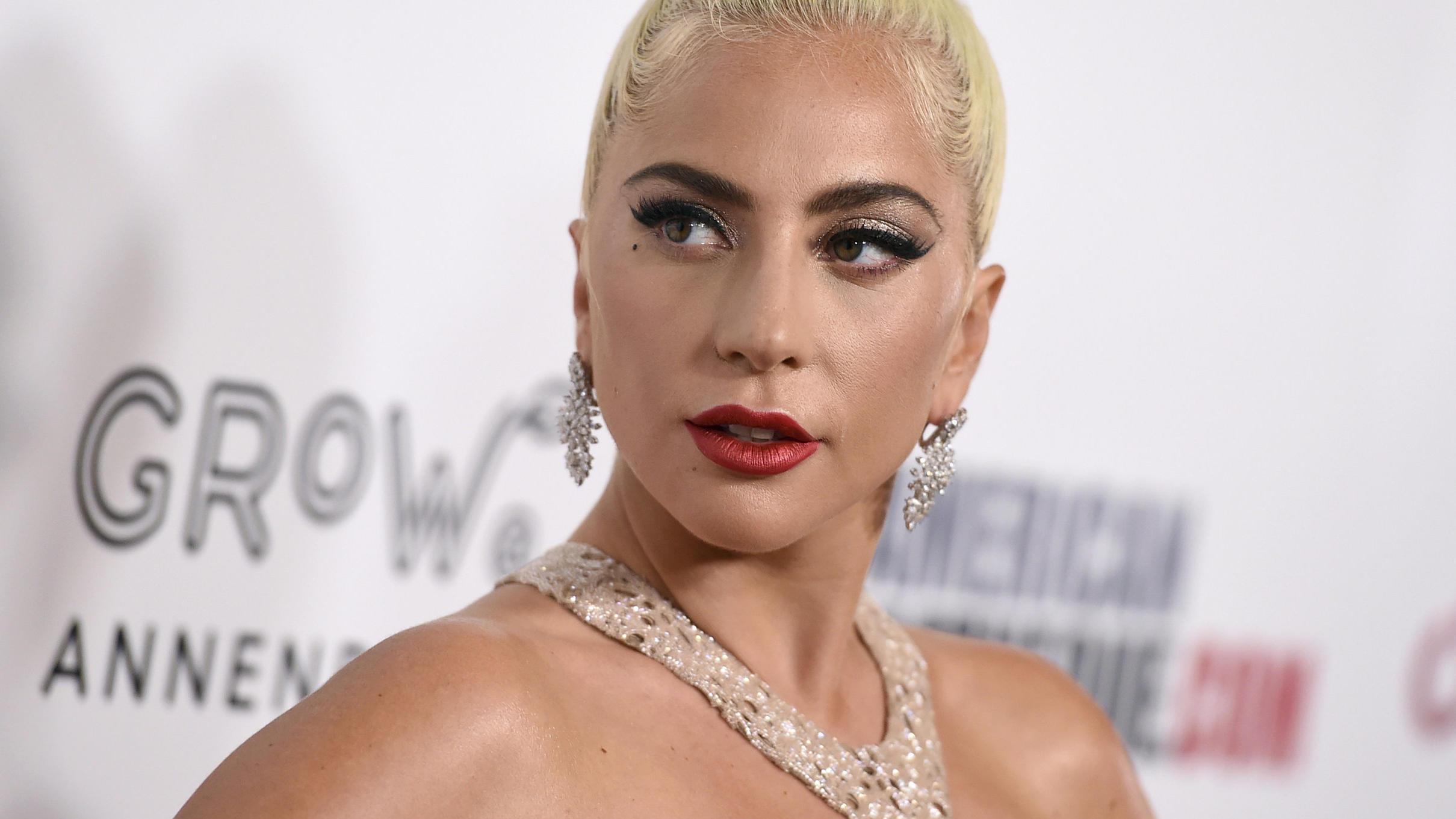 Nach Hunde-Entführung: Lady Gaga zahlt Krankenhaus-Rechnung ihres Hundesitters - VIP.de, Star News