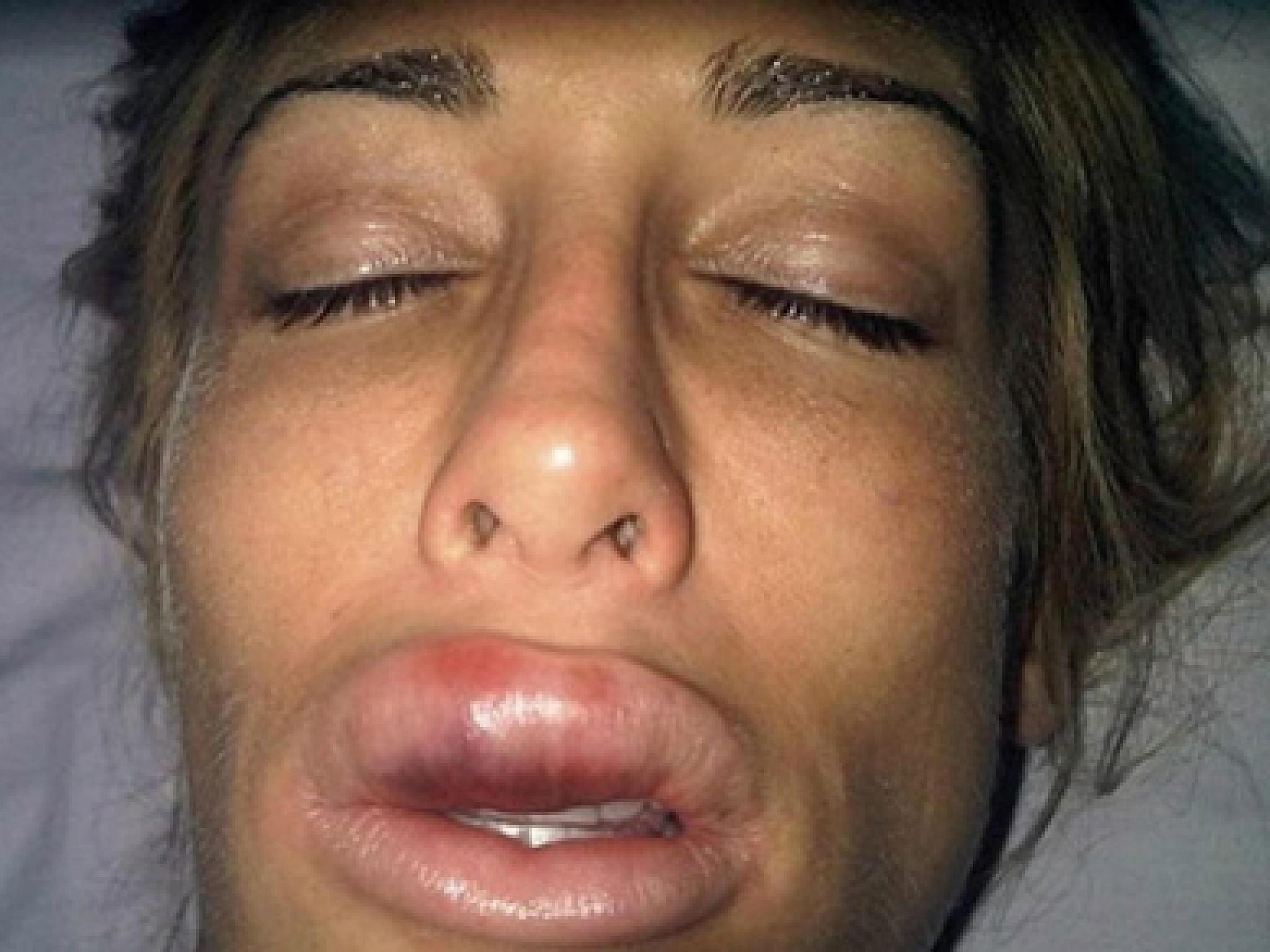 Смотреть фото самых больших губ, Фотографии Девушки с большими размерами половых 10 фотография