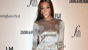Winnie Harlow läuft für 'Victoria's Secret'