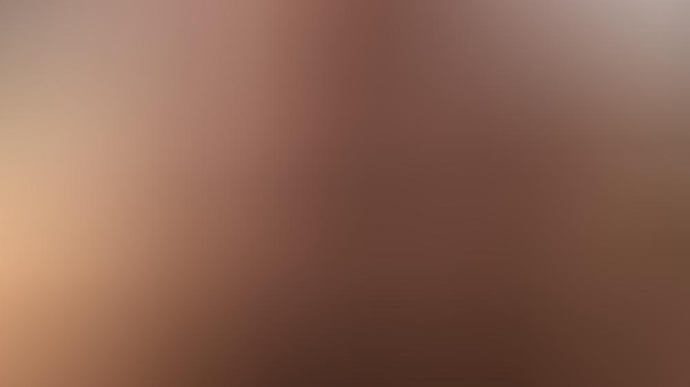 Taylor Lautner: Haariges Drama