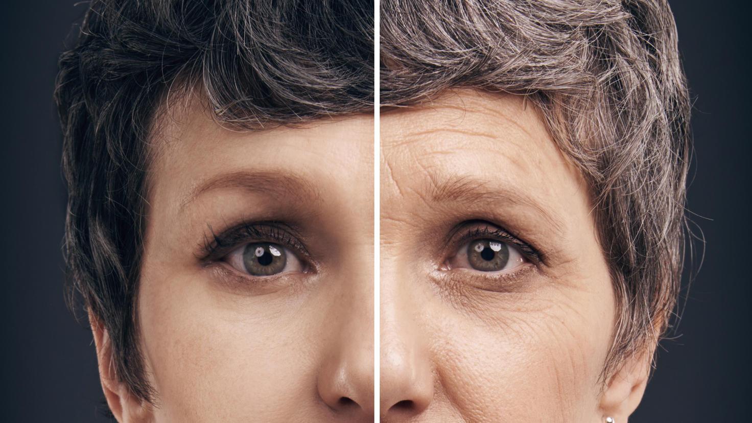 Alterungsprozess Aufhalten